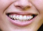 braces & orthadontics