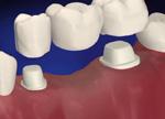 getting a dental bridge