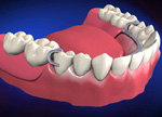 dentures and replacement
