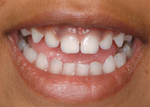 your child's baby teeth