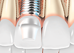 getting dental implants
