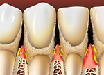 preventing periodontal disease