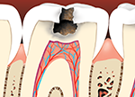 tooth decay issues